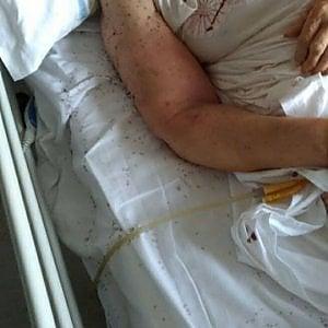 malasanità formiche in ospedale
